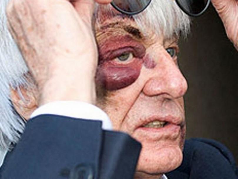 Ecclestone atracado y herido en Londres